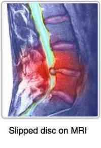 A slipped disc as seen on an MRI.