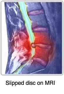 Lumbar Facet Arthropathy Spondylolysthesis Causes Lower