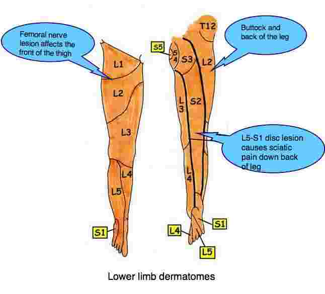 A diagram showing the sciatic and femoral nerve dermatome patterns.