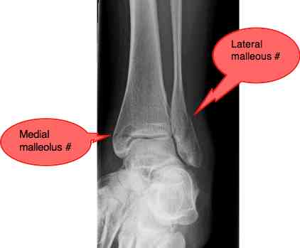 A fracture of the ankle.