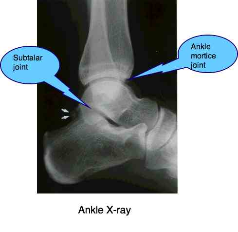 Ankle joint pain x-ray