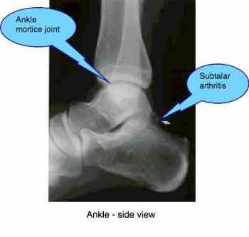 The side view of an ankle.