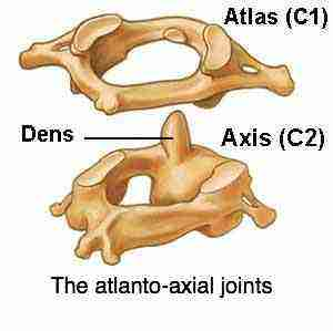 The atlanto-axial joints.