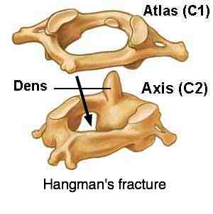 Atlas axis hangmans fracture neck pain anatomy is for those who want to understand their problems
