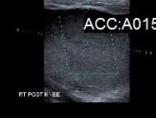 Baker's cyst ultrasound scan