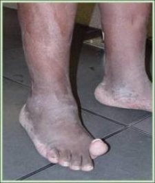 Big toe weakness low back and leg pain