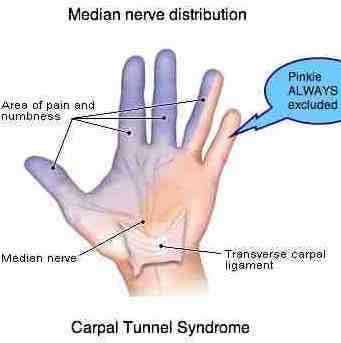Carpal tunnel syndrome always excludes the pinkie.