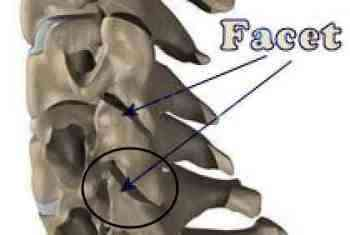 A home traction unit has many benefits for a cervical facet syndrome.