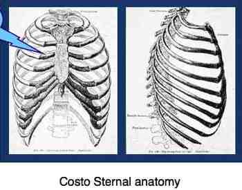 Diagrams of the chest and costosternal anatomy.