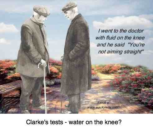 Clarke's test is for fluid and crepitus in the knee.