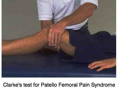 Clarke's test for patello femoral pain syndrome.