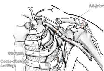 The costosternal cartilage is a big source of chest pain.