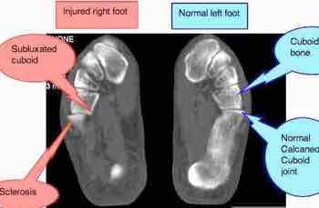 An MRI of the foot showing a cuboid subluxation after an ankle sprain.