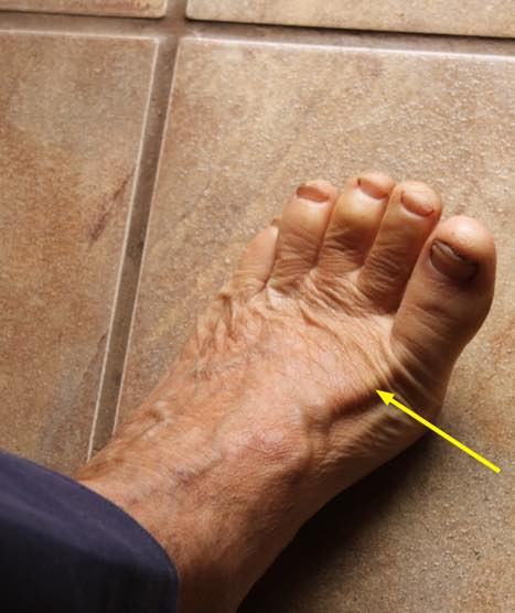Great toe weakness associated with low back and leg pain.