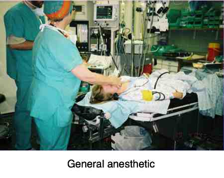 General anaesthetic.