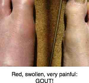 A red, swollen toe with gout is certainly another cause of foot pain.