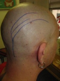 The greater occipital nerve distribution shows the typical one sided headache pattern.