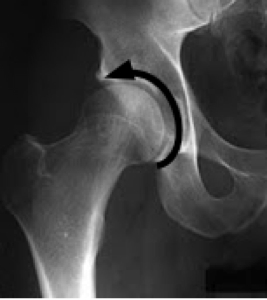 The normal spot hip x-ray showing the full circle of the head of the femur.