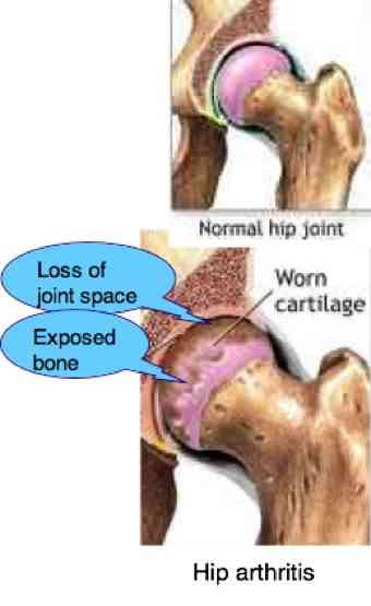 Hip arthritis, caught early is certainly a chiropractic condition.