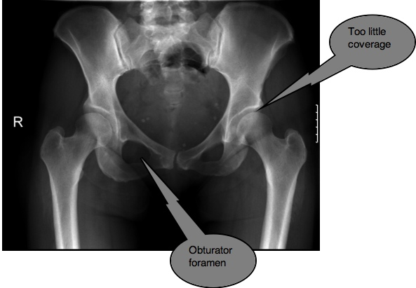 Hip dysplasia Both DDH and FAI are associated with labral/cartilage tears and hip ...