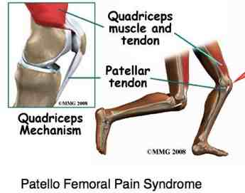 The quadriceps mechanism showing how knee pain develops.