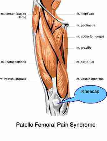 Knee pain and the associated quadriceps muscles.