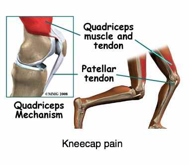 Kneecap pain is a common complaint in chiropractic clinics.