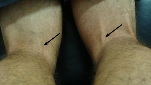 L5 deep tendon reflex with tendon marked.