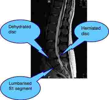 Lower back and leg pain MRI