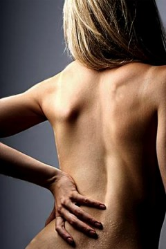 A woman with lower lumbar back pain.