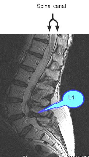 A lateral MRI showing lumbar facet arthropathy.