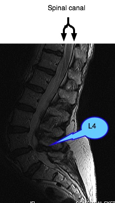 A lateral MRI view showing lumbar facet arthropathy and spondylolysthesis.