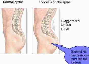 fix lower back curve