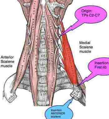 inter scalene triangle is a narrow passage affecting nerves, Human Body