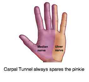 Median nerve distribution in the hand; source of tingling, weakness and pain.