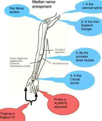 The median nerve entrapment sites.