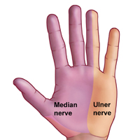 The median nerve distribution excludes the little finger.