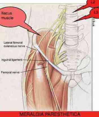 meralgia paresthetica causes numbness and or pain in the upper leg., Muscles