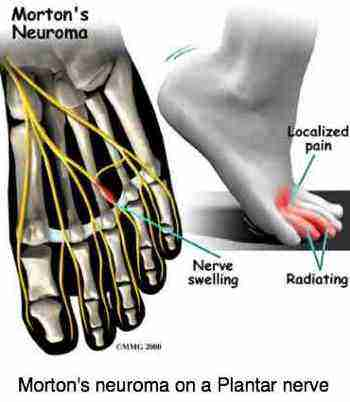 Interdigital nerve swelling due to a Morton's neuroma.