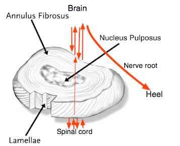 The normal disc showing the position of the spinal cord and a nerve root.