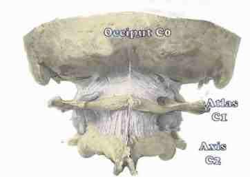 Occiput, atlas and axis subluxations are common causes of neck pain and headache.