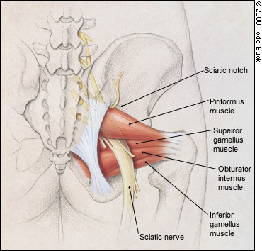 Diagram of the piriformis muscle and how it can cause sciatica.