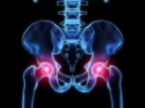 Arthritis in the hip joint.