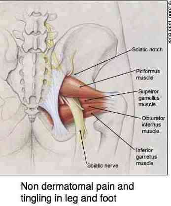 Graphic of the piriformis muscle showing its anatomical proximity to the sciatic nerve and potential cause of leg pain.
