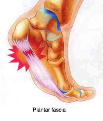 Plantar myofascitis responds well to chiropractic treatment if he can assess and adjustment the bones of the foot and ankle.