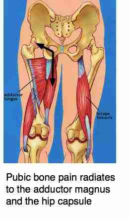 Location of pubic bone pain.