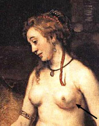 Rembrandt's wife with breast cancer.