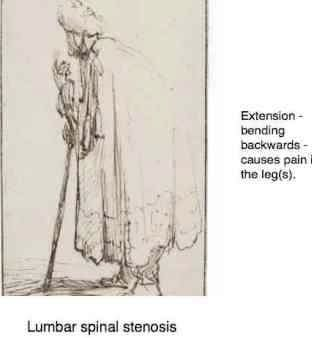 Reproduction of a Rembrandt sketch of a man with lumbar stenosis.
