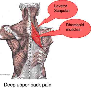 The rhomboid and levator scapular muscles are a common source of deep upper back pain.