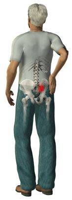 Hip and buttock pain are treated by Chiropractor Louis Trichard
